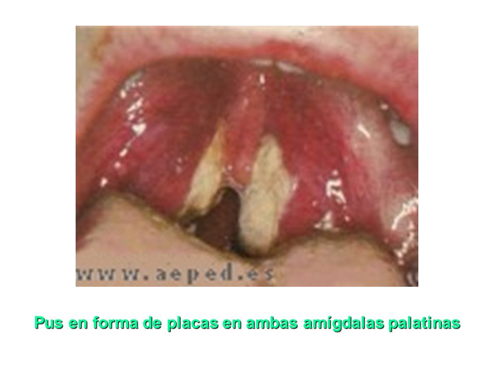 Pus en forma de placas en ambas amígdalas palatinas