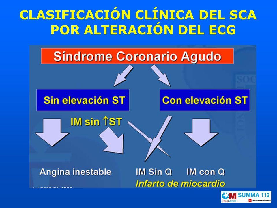 CLASIFICACIÓN CLÍNICA DEL SCA POR ALTERACIÓN DEL ECG
