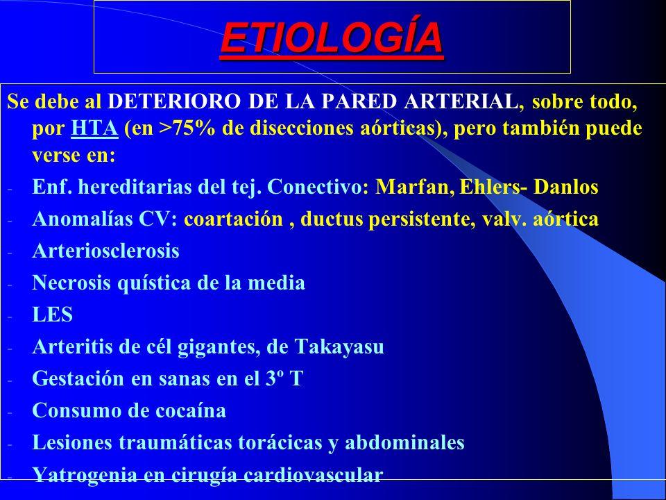 ETIOLOGÍA Se debe al DETERIORO DE LA PARED ARTERIAL, sobre todo, por HTA (en >75% de disecciones aórticas), pero también puede verse en: