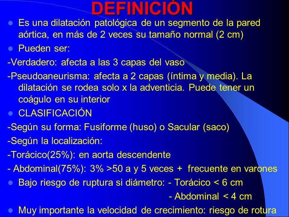 DEFINICIÓNEs una dilatación patológica de un segmento de la pared aórtica, en más de 2 veces su tamaño normal (2 cm)