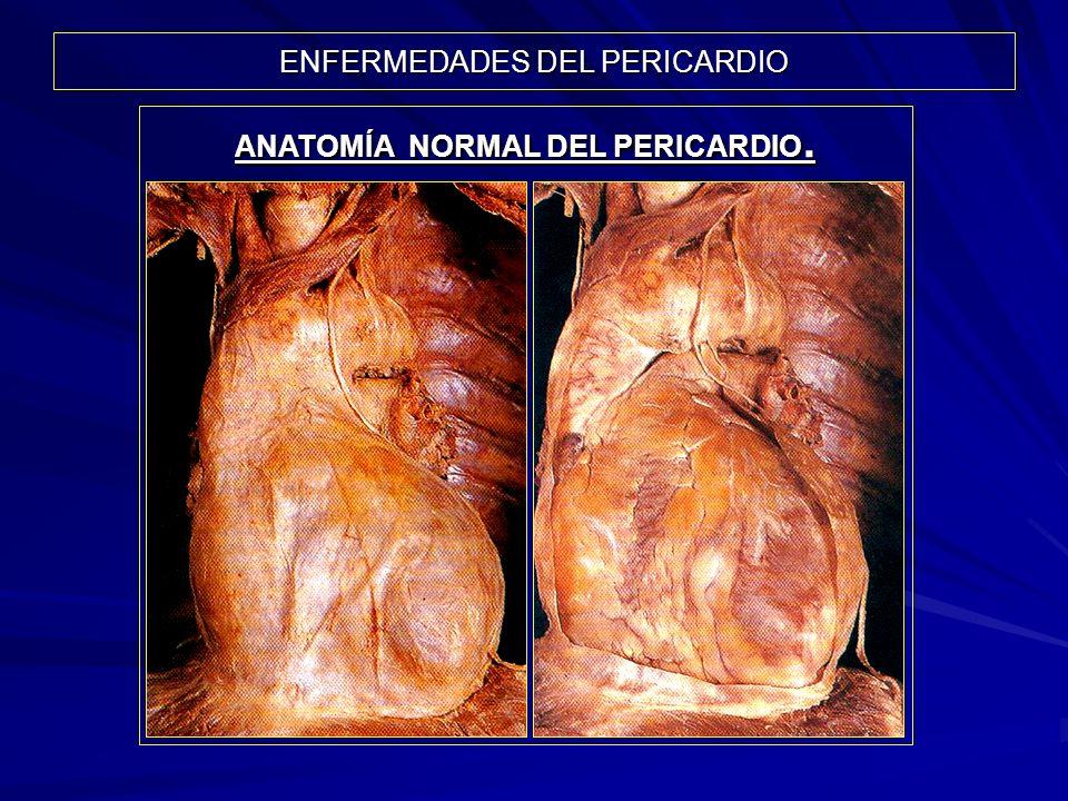 ANATOMÍA NORMAL DEL PERICARDIO.