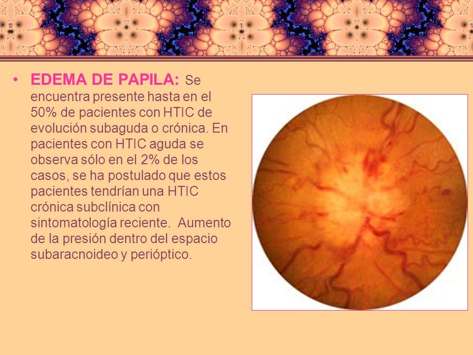 EDEMA DE PAPILA: Se encuentra presente hasta en el 50% de pacientes con HTIC de evolución subaguda o crónica.