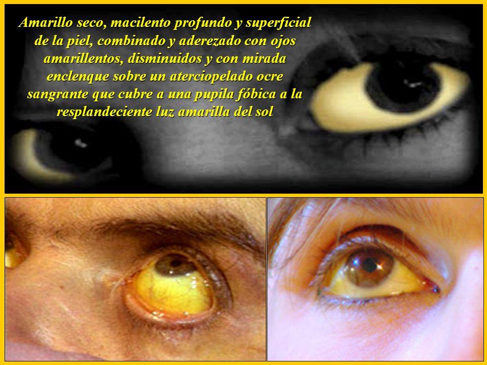 Amarillo seco, macilento profundo y superficial de la piel, combinado y aderezado con ojos amarillentos, disminuidos y con mirada enclenque sobre un aterciopelado ocre sangrante que cubre a una pupila fóbica a la resplandeciente luz amarilla del sol