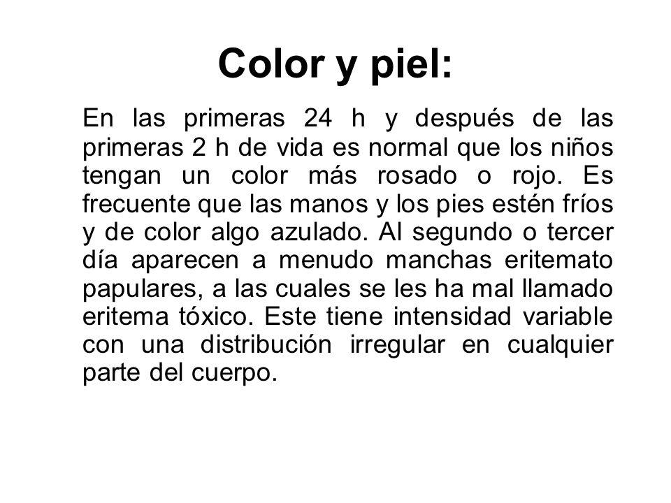 Color y piel: