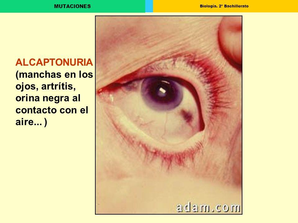 ALCAPTONURIA (manchas en los ojos, artrítis, orina negra al contacto con el aire... )