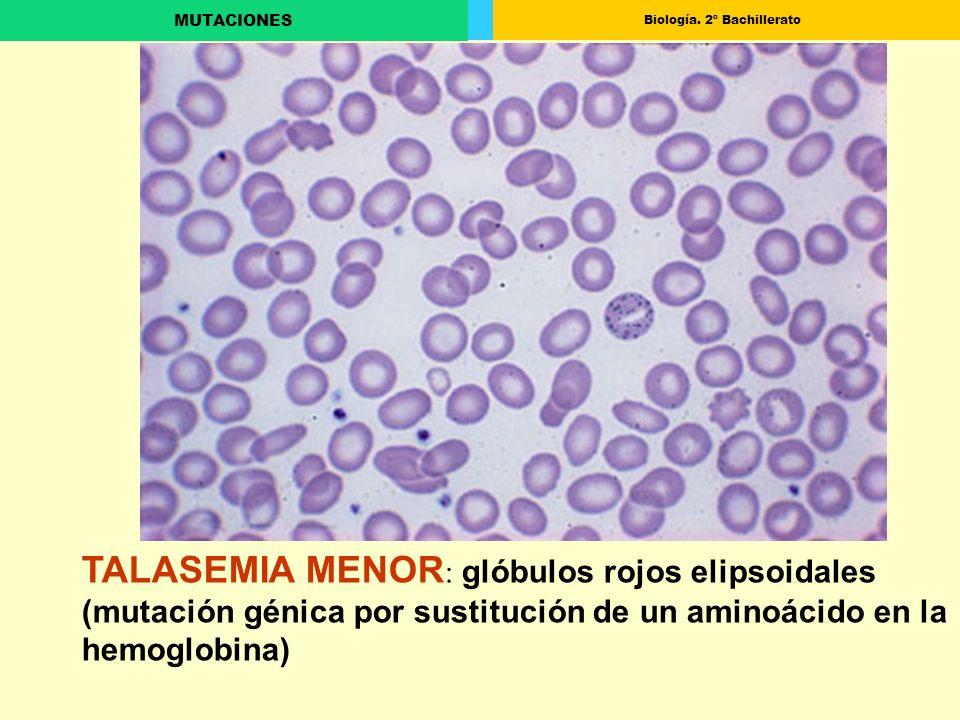 TALASEMIA MENOR: glóbulos rojos elipsoidales (mutación génica por sustitución de un aminoácido en la hemoglobina)