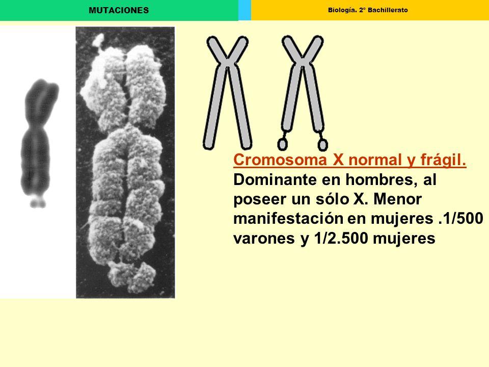 Cromosoma X normal y frágil. Dominante en hombres, al poseer un sólo X