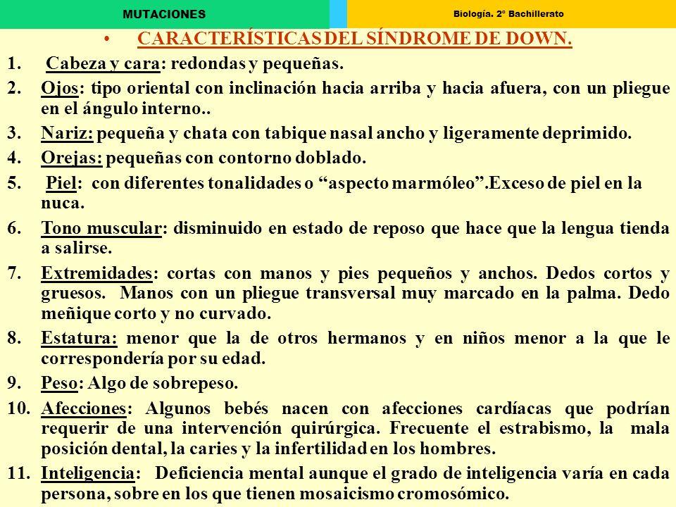 CARACTERÍSTICAS DEL SÍNDROME DE DOWN.