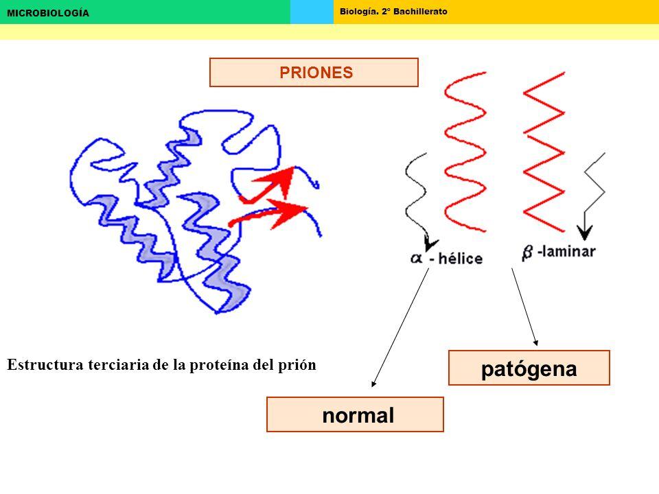 PRIONES Estructura terciaria de la proteína del prión patógena normal