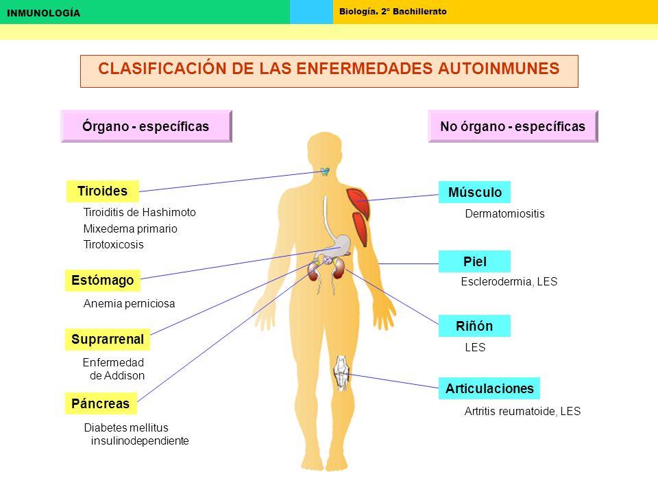 CLASIFICACIÓN DE LAS ENFERMEDADES AUTOINMUNES No órgano - específicas