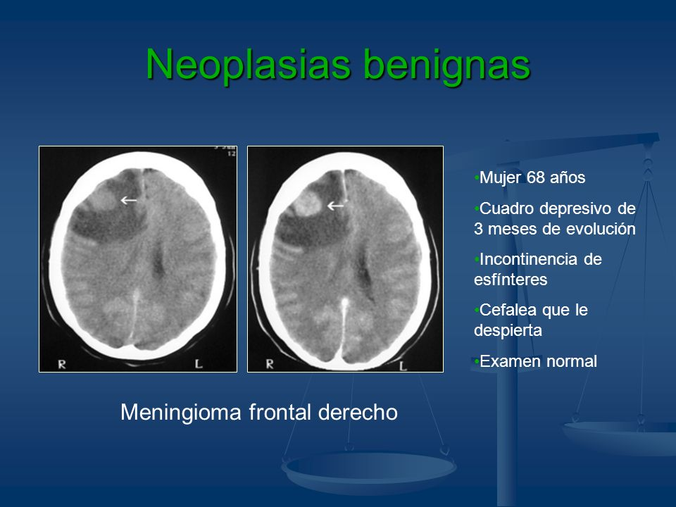 Meningioma frontal derecho