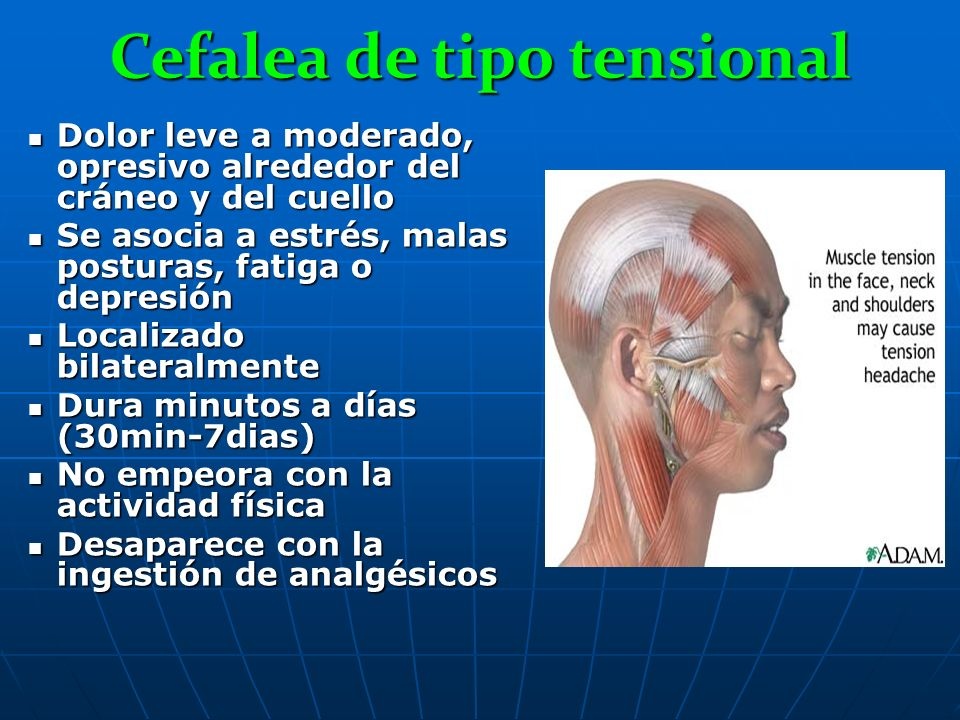 Cefalea de tipo tensional