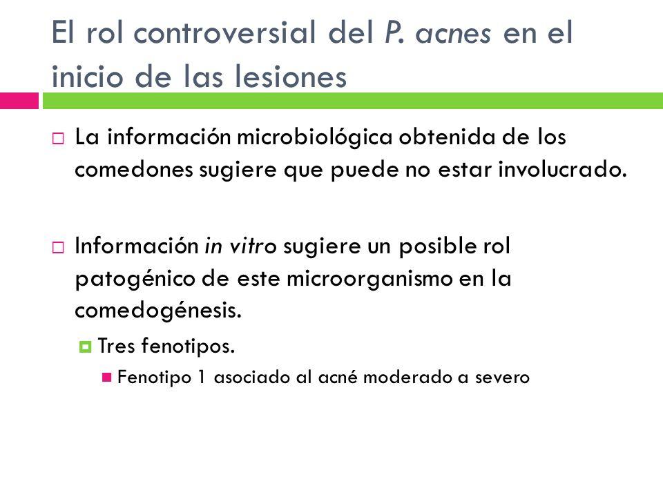 El rol controversial del P. acnes en el inicio de las lesiones