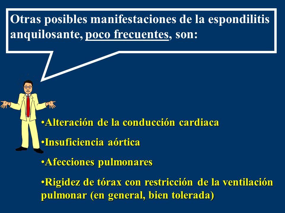 Otras posibles manifestaciones de la espondilitis anquilosante, poco frecuentes, son: