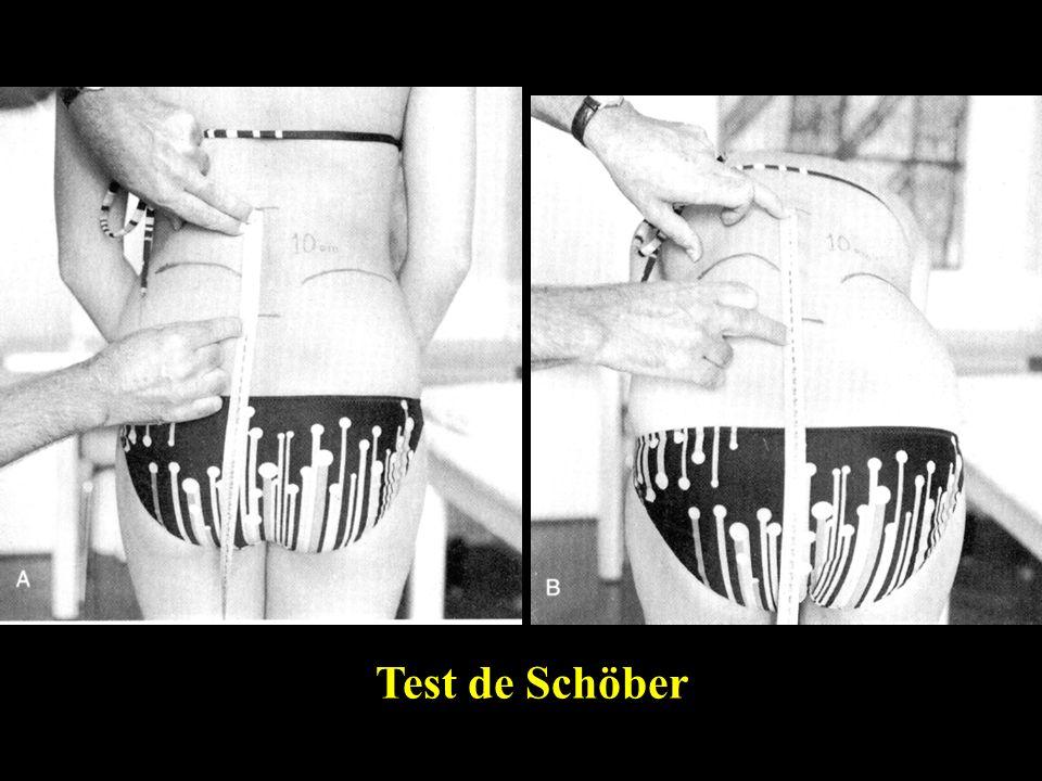 Test de Schöber