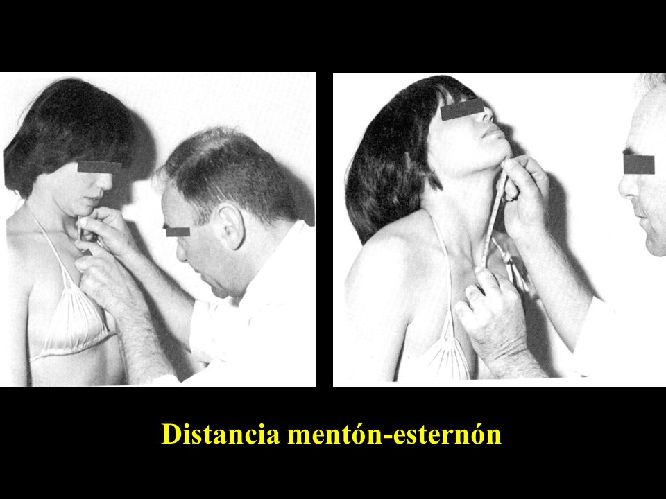 Distancia mentón-esternón