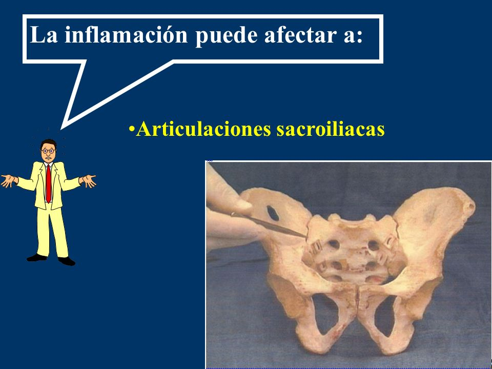 La inflamación puede afectar a: