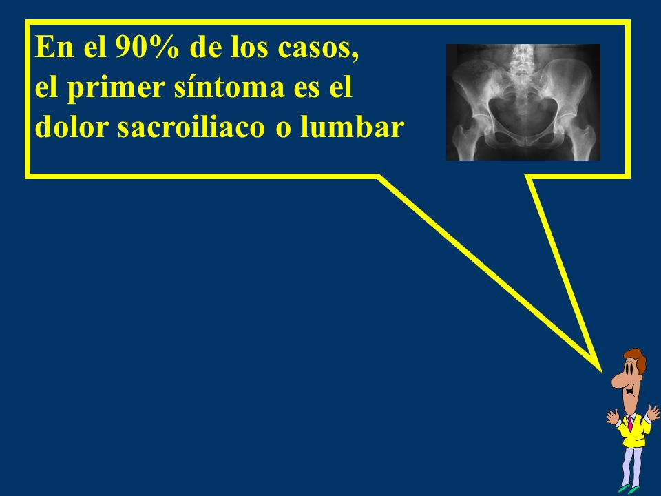 En el 90% de los casos, el primer síntoma es el dolor sacroiliaco o lumbar