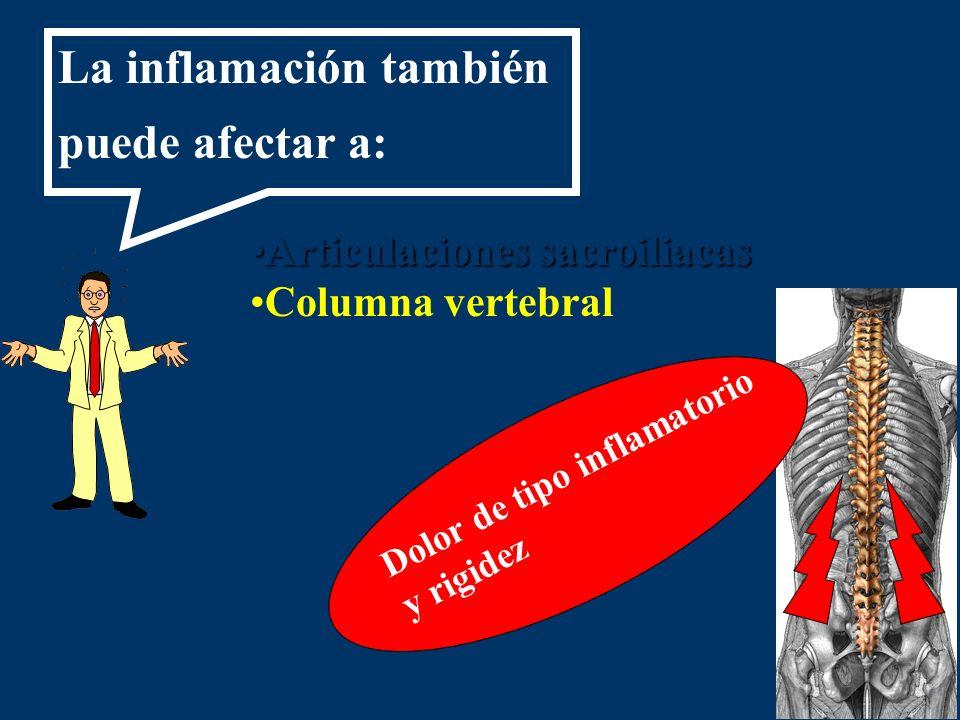 La inflamación también puede afectar a: