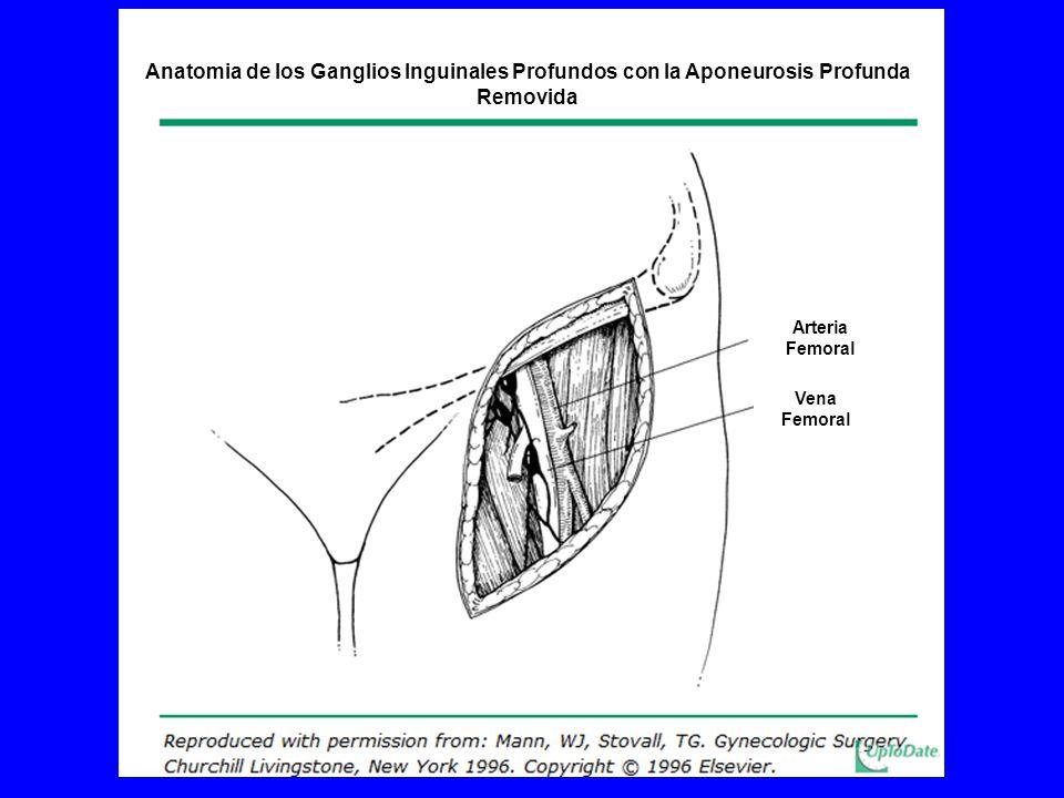 Anatomia de los Ganglios Inguinales Profundos con la Aponeurosis Profunda Removida