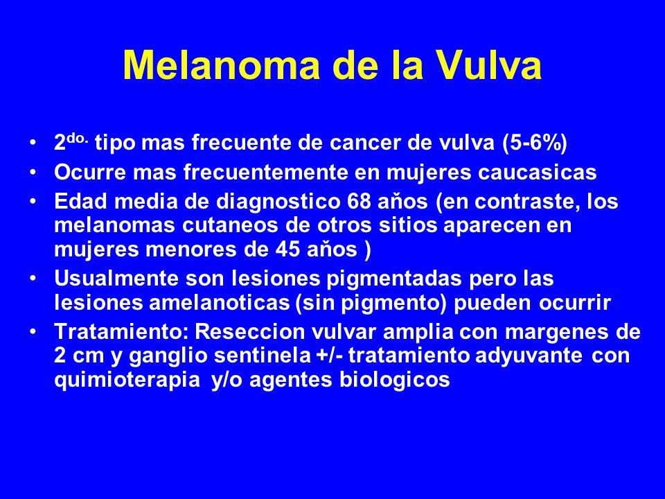 Melanoma de la Vulva 2do. tipo mas frecuente de cancer de vulva (5-6%)