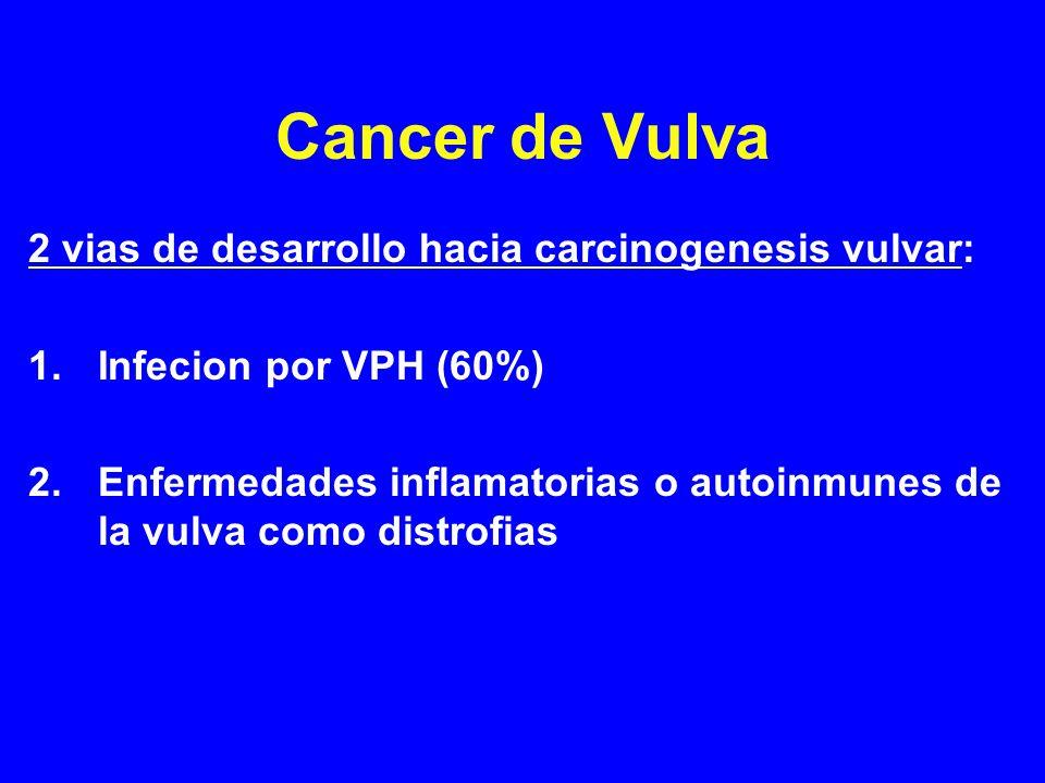 Cancer de Vulva 2 vias de desarrollo hacia carcinogenesis vulvar: