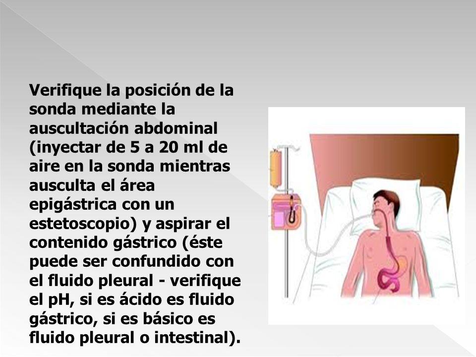 Verifique la posición de la sonda mediante la auscultación abdominal (inyectar de 5 a 20 ml de aire en la sonda mientras ausculta el área epigástrica con un estetoscopio) y aspirar el contenido gástrico (éste puede ser confundido con el fluido pleural - verifique el pH, si es ácido es fluido gástrico, si es básico es fluido pleural o intestinal).