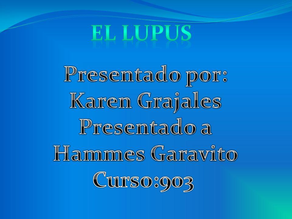 El lupus Presentado por: Karen Grajales Presentado a Hammes Garavito Curso:903