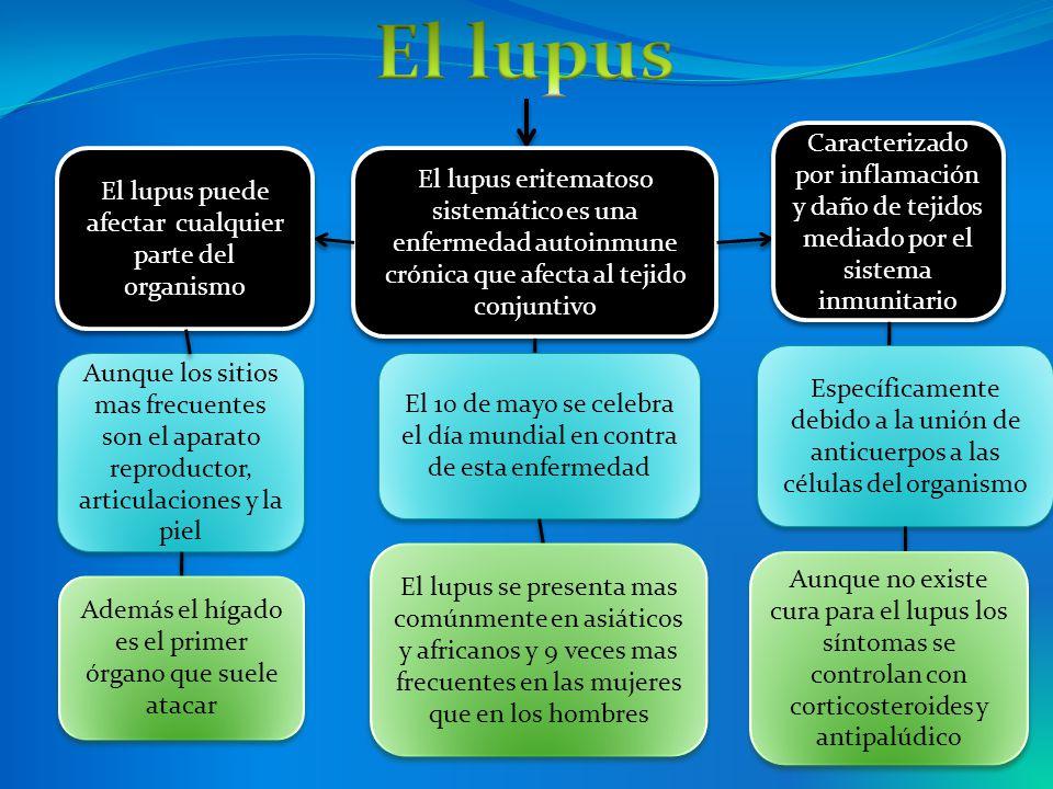El lupus Caracterizado por inflamación y daño de tejidos mediado por el sistema inmunitario. El lupus puede afectar cualquier parte del organismo.