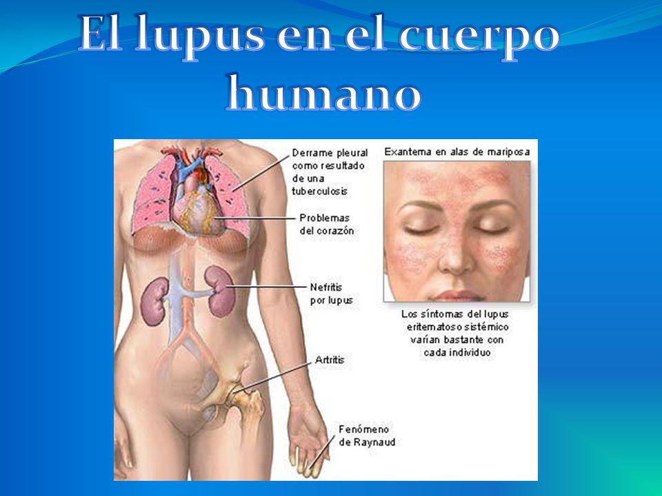 El lupus en el cuerpo humano