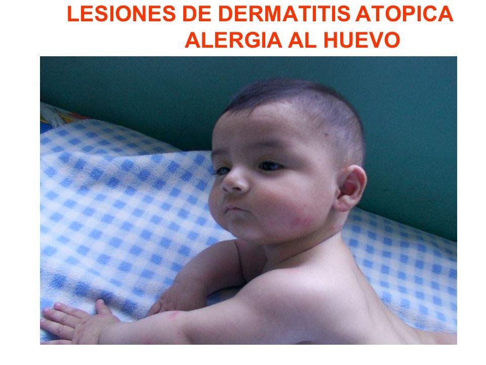 LESIONES DE DERMATITIS ATOPICA ALERGIA AL HUEVO