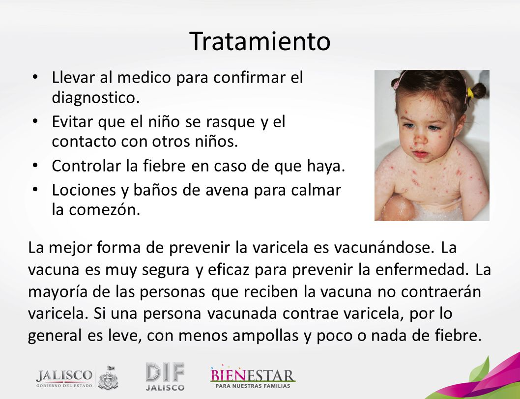 Resultado de imagen para prevencion de la varicela