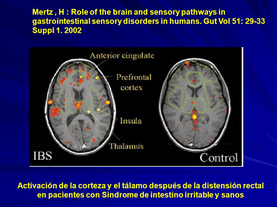 Mertz , H : Role of the brain and sensory pathways in gastrointestinal sensory disorders in humans. Gut Vol 51: 29-33 Suppl 1. 2002