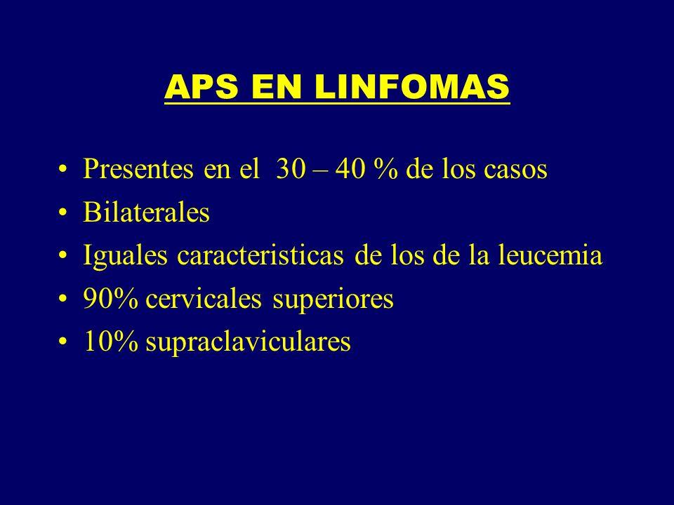 APS EN LINFOMAS Presentes en el 30 – 40 % de los casos Bilaterales