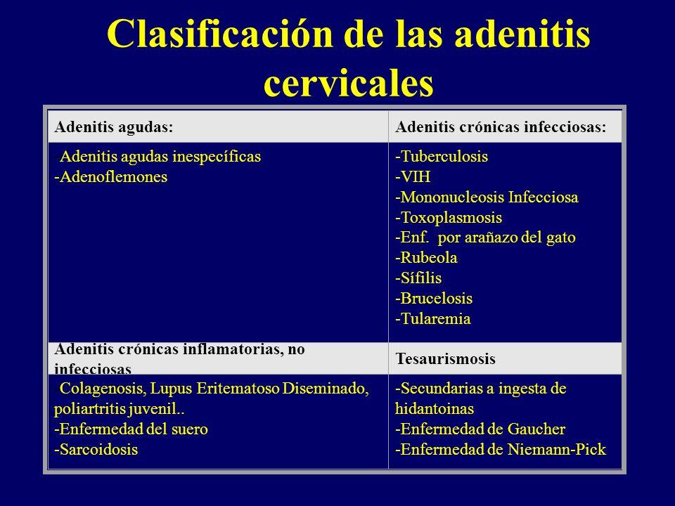 Clasificación de las adenitis cervicales