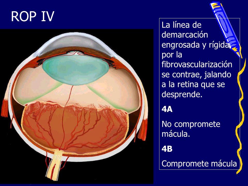 ROP IVLa línea de demarcación engrosada y rígida por la fibrovascularización se contrae, jalando a la retina que se desprende.