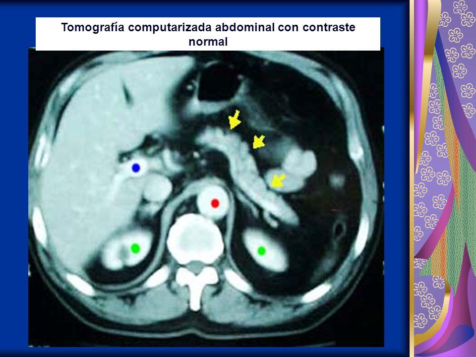 Tomografía computarizada abdominal con contraste normal