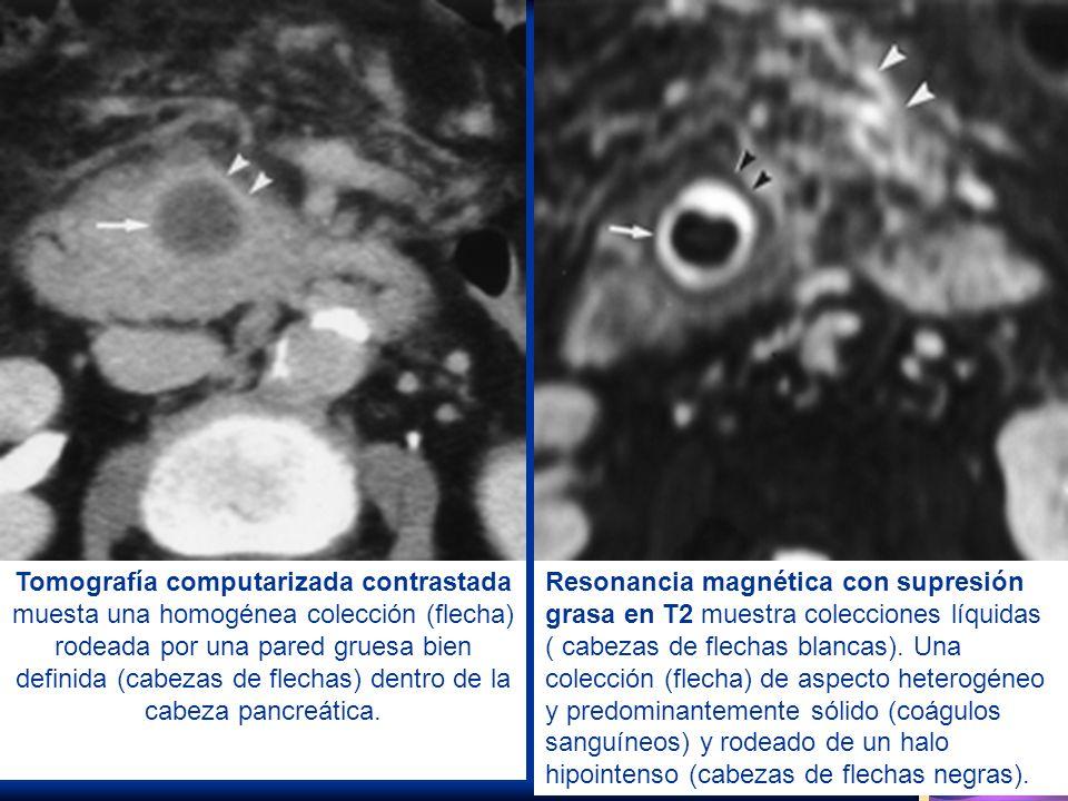 Tomografía computarizada contrastada muesta una homogénea colección (flecha) rodeada por una pared gruesa bien definida (cabezas de flechas) dentro de la cabeza pancreática.