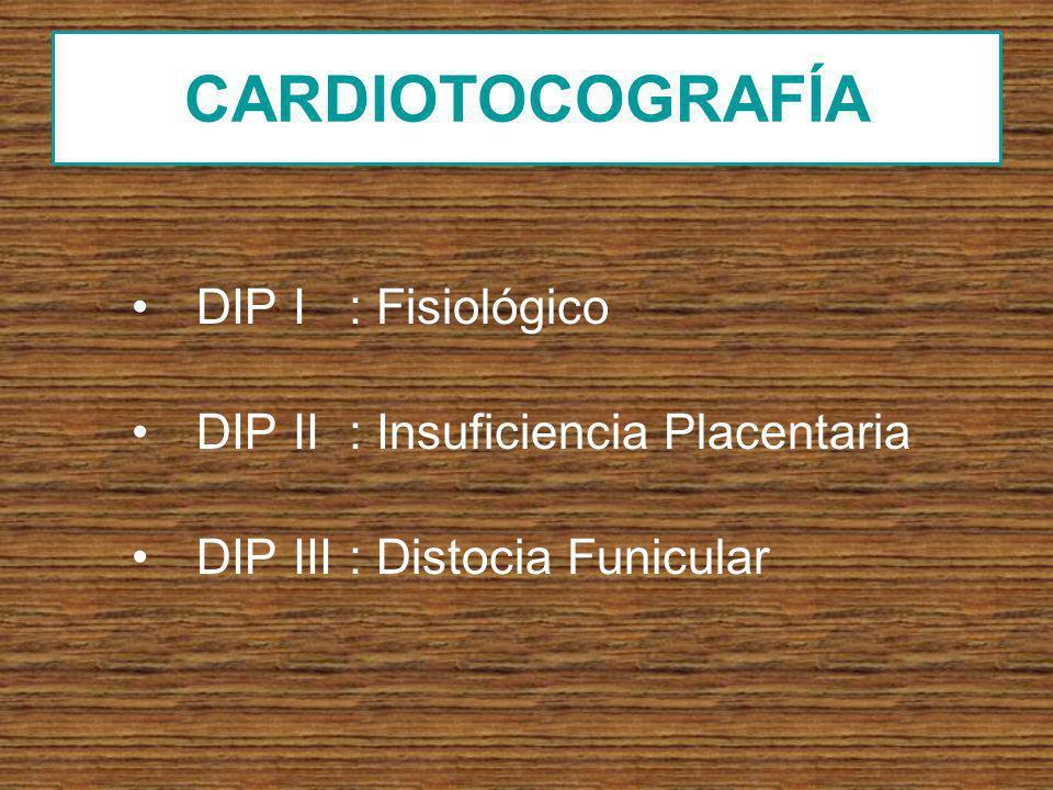 CARDIOTOCOGRAFÍA DIP I : Fisiológico