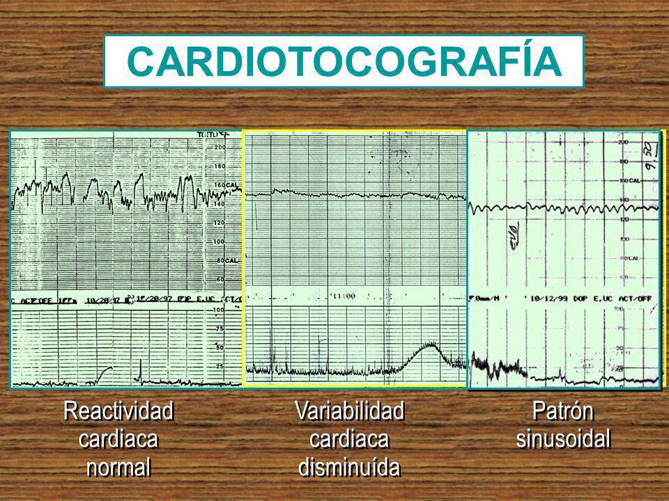 CARDIOTOCOGRAFÍA Reactividad cardiaca normal