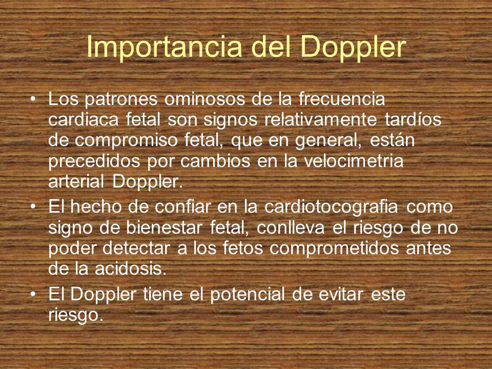 Importancia del Doppler