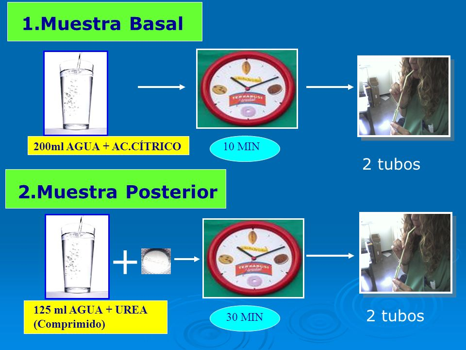 + 1.Muestra Basal 2.Muestra Posterior 2 tubos 2 tubos