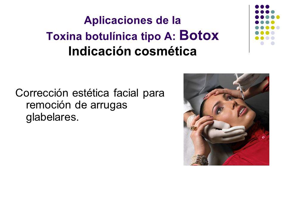 Aplicaciones de la Toxina botulínica tipo A: Botox Indicación cosmética