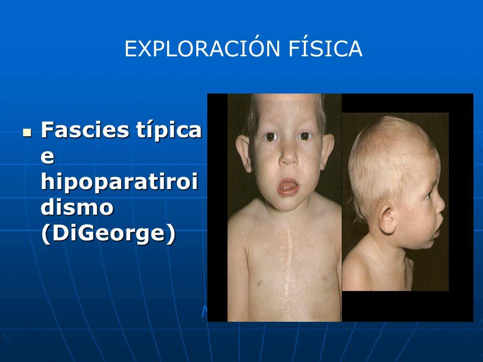 Fascies típica e hipoparatiroidismo (DiGeorge)