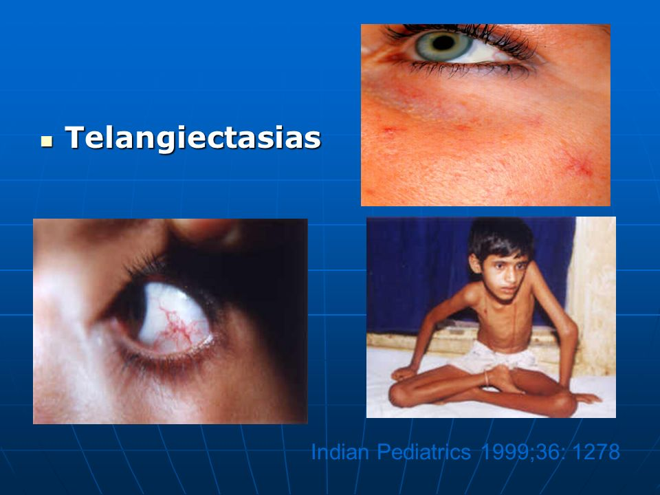 Telangiectasias Indian Pediatrics 1999;36: 1278