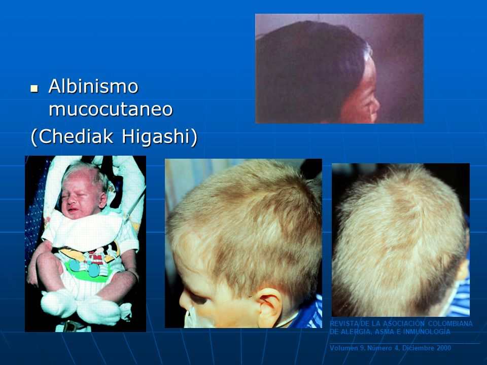 Albinismo mucocutaneo (Chediak Higashi)