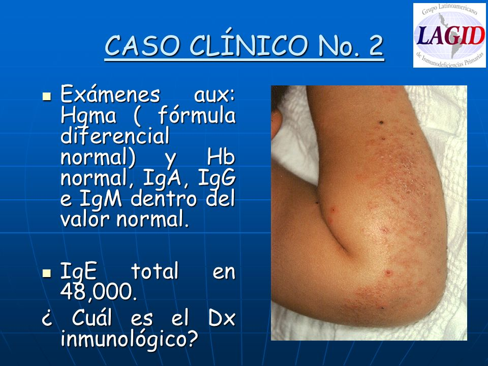 CASO CLÍNICO No. 2 Exámenes aux: Hgma ( fórmula diferencial normal) y Hb normal, IgA, IgG e IgM dentro del valor normal.