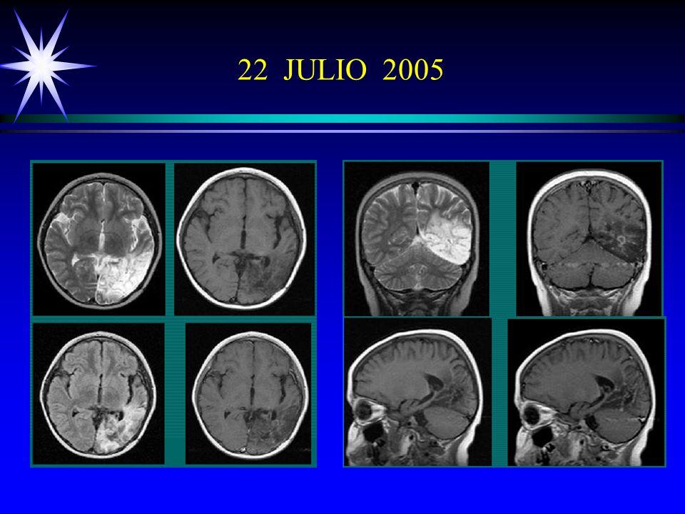 22 JULIO 2005