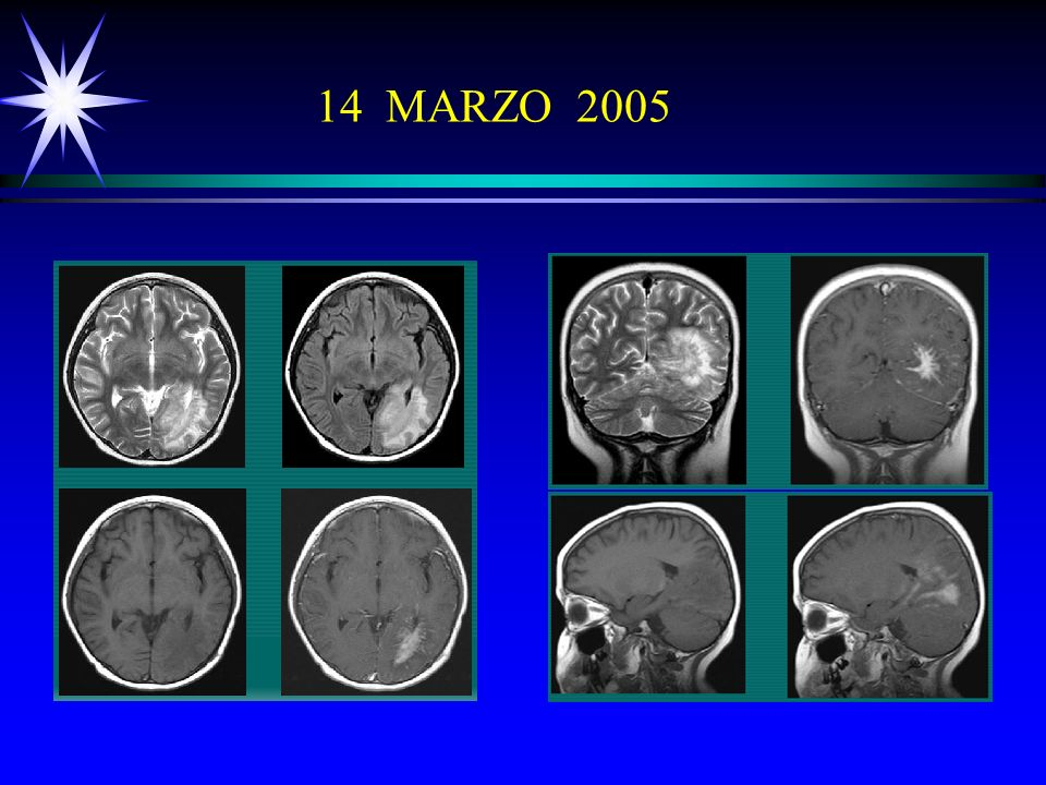 14 MARZO 2005