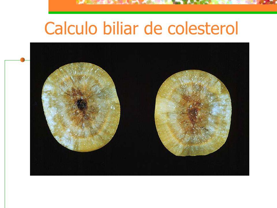 Calculo biliar de colesterol